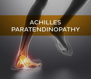 Achilles Paratendinopathy