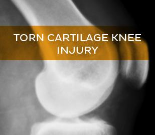 Torn Cartilage Knee Injury