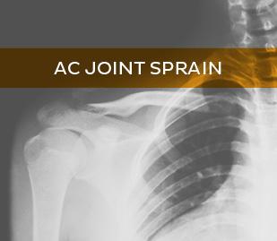 AC Joint Sprain
