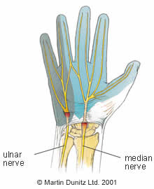 Carpel Tunnel Syndrome - Wrist Pain