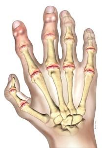 Osteoartrita umarului