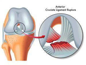 medical Illustration of anterior cruciate ligament rupture