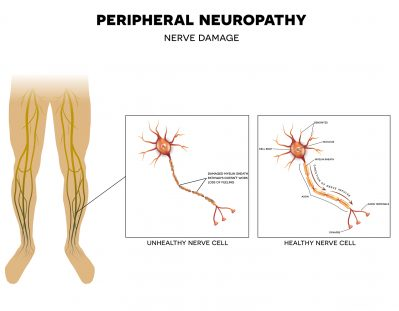 Neuropathy damage of peripheral nerves. Pain and loss of sensation in the extremities. This can be caused by Diabetes.