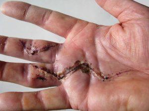 hand scar from duputren's disease hand surgery