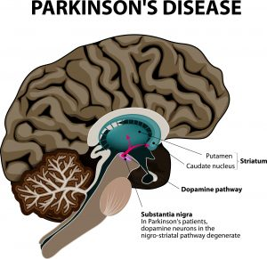 Parkinson's Disease. Cross-section of the human brain showing the substantia nigra, the region affected by Parkinson's disease. Illustration shows Neuronal Pathways that Degenerate in Parkinson's Disease.