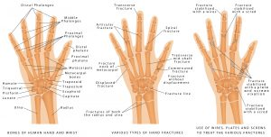 Various types of hand fractures. Fractures of both the radius and ulna. Displaced Fracture and Fracture without displacement. Use of wires, plates and screws to treat the various fractures