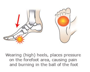 Mortons neroma - High heels and foot pain - Physiosteps