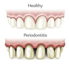 a canneberge et ses proanthocyanes contre la parodontie
