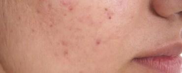 acne sul viso