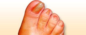 Resultado de imagen para Onicogrifosis