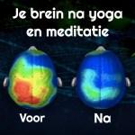 Waarom yoga bij Pilago