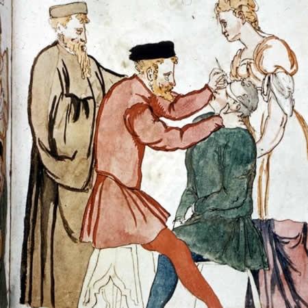 médecine médiévale: l'anestesia