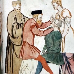 Medicina nel Medioevo: operazione di cataratta