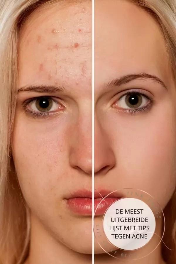 Wat kun je doen tegen acne