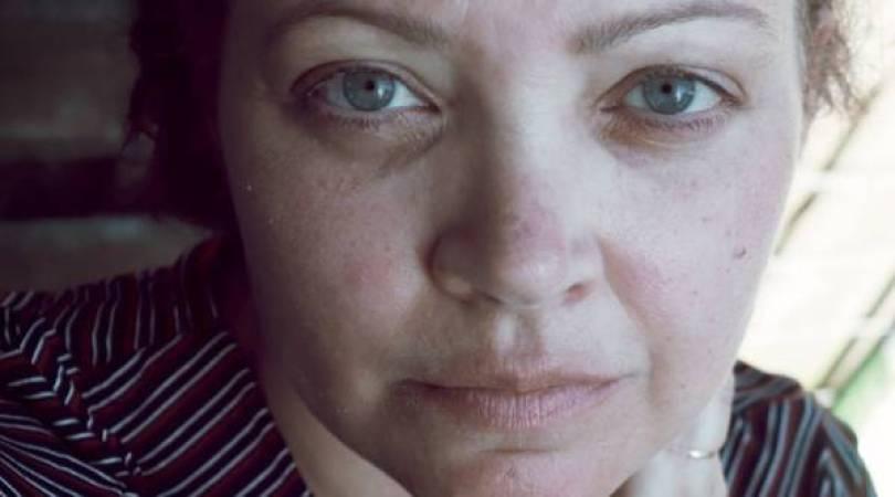 collageen werkt - Is collageen eindelijk het wondermiddel voor de huid?