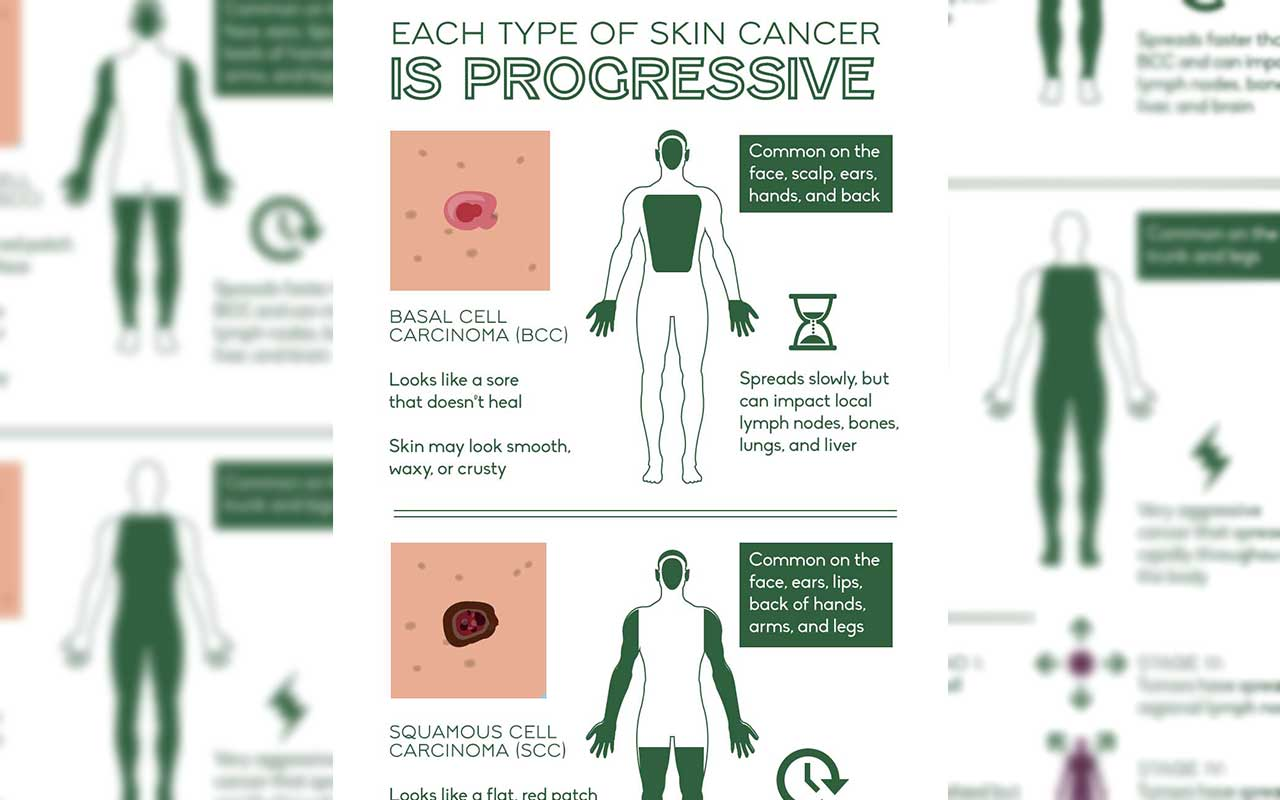 Save Your Skin From This Dangerous Disease How To Detect Skin Cancer