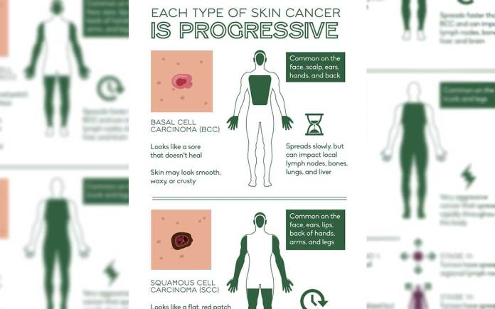Save-Your-Skin-FromHow-to-Detect-Skin-Cancer-triggers-treatment