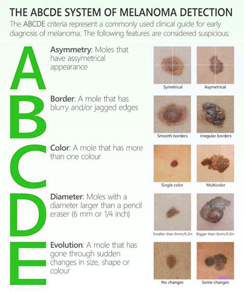 How to detect melanoma. Infographic.