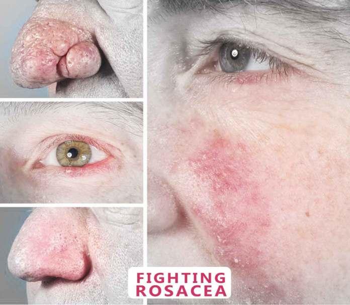 Erythematotelangiectatic-Rosacea-drugs-treatments