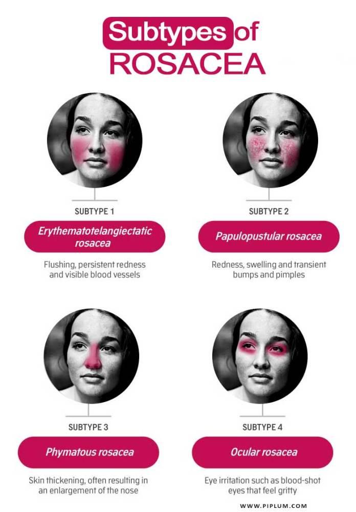 Subtypes-of-Rosacea-women-flush-face-redness-acne