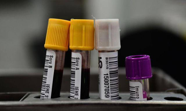 Instituto Hematologia inicia testes com plasma sanguíneo