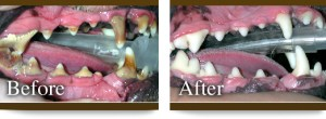 Professional dental cleaning before and after.