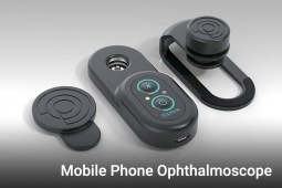 Peek Retina Mobile Ophthalmoscope