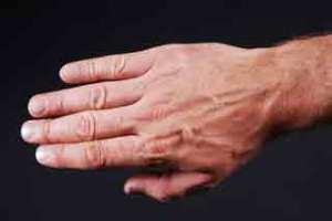 Gepflegte Fingernägel sind ein Spiegel der Gesundheit