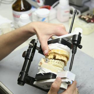 Beim Zahnersatz lohnt sich ein Preisvergelich