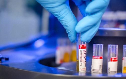 """Coronavirus, Aiello: """"la curva dell'epidemia è in calo anche in Calabria"""""""