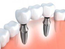 Zahnstaffel - Begrenzung der Leistungen für Zahnersatz in den ersten Jahren