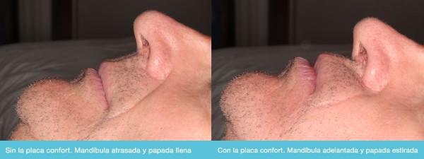 Corrije el avance mandibular con la Placa Confort