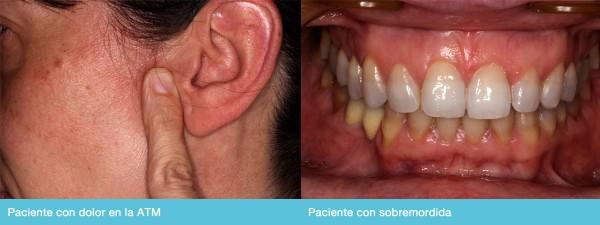 Corrije las disfunciones de articulación en la mandíbula (ATM) con la Placa Confort