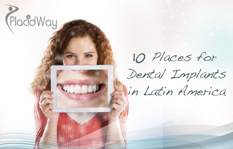 Cheap Dental Implants in Mexico