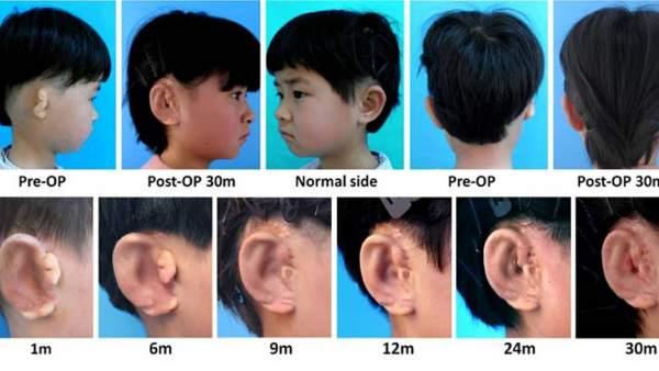 Pacientes tratados con la técnica para implantar orejas que emplea impresión 3D.