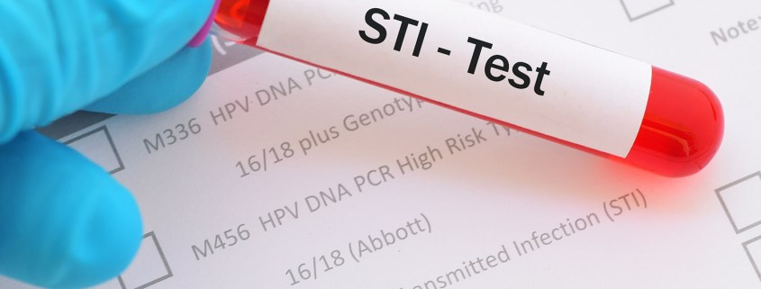 STD Testing Is Easy and Convenient