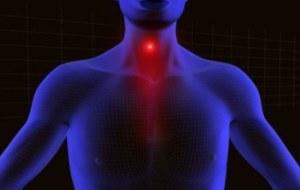 Esofagitis por reflujo: Resultados de tres tratamientos con MTC