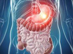Gastritis Crónica: tratamiento con Plantas Medicinales a 100 pacientes