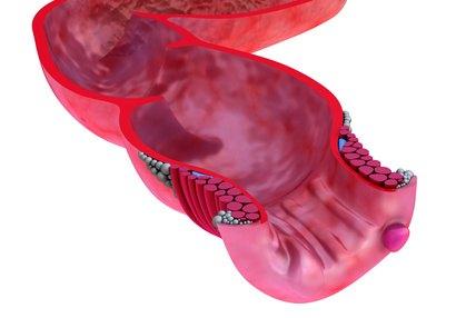 Hemorroides, remedios naturales