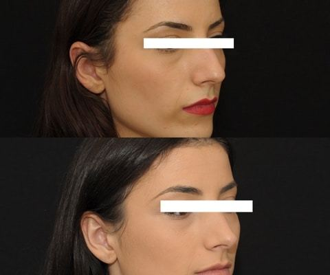 Rhinoplastie 7 ultrasonique vue de 3/4