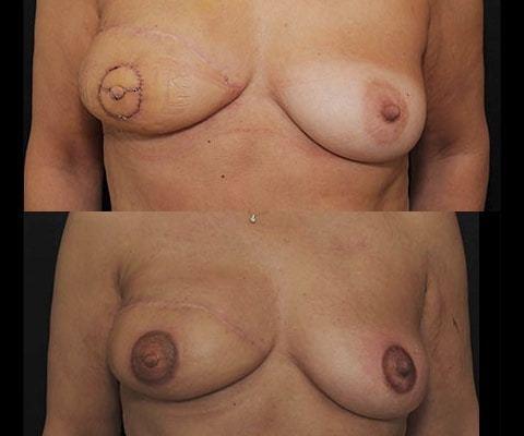 Reconstruction mammaire secondaire par lambeau DIEP