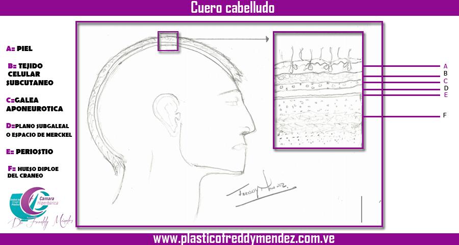 LESIONES DEL CUERO CABELLUDO | Dr. Freddy Méndez