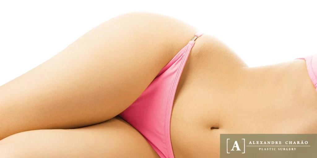 Abdominoplasty in rio de janeiro