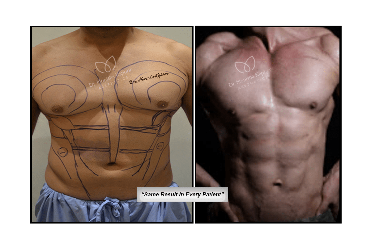 Six Pack Surgery For Men