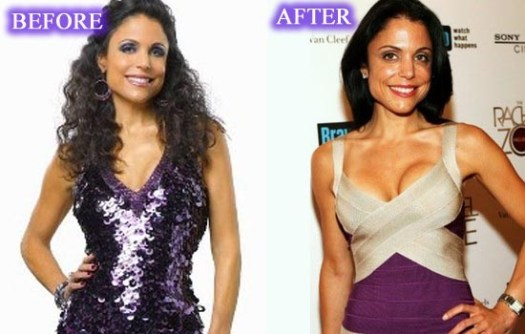 Bethenny Frankel Plastic Surgery before and after