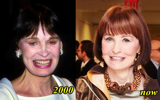 Gloria Vanderbilt Plastic Surgery Before After