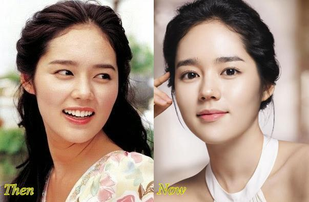 Han Ye Seul Plastic Surgery Before After