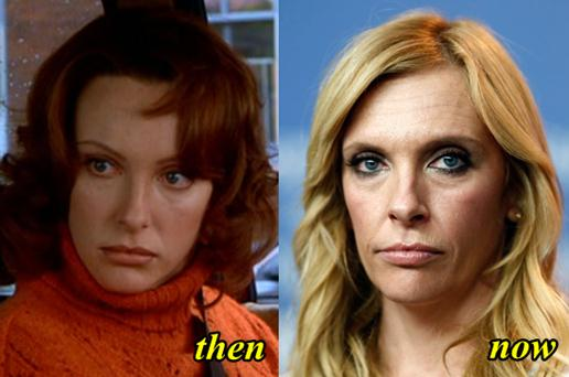 Toni Collette Plastic Surgery Before After