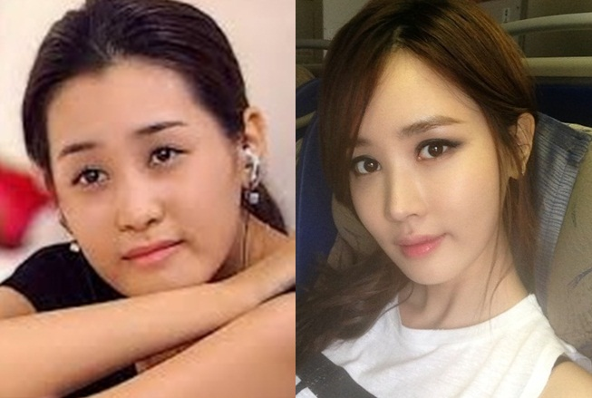 Lee Da Hae Plastic Surgery Before After