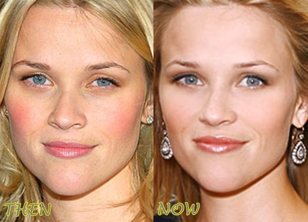 Reese Witherspoon Plastic Surgery Before After